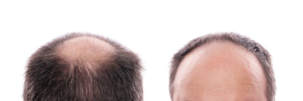 Richtige kopfform für eine glatze