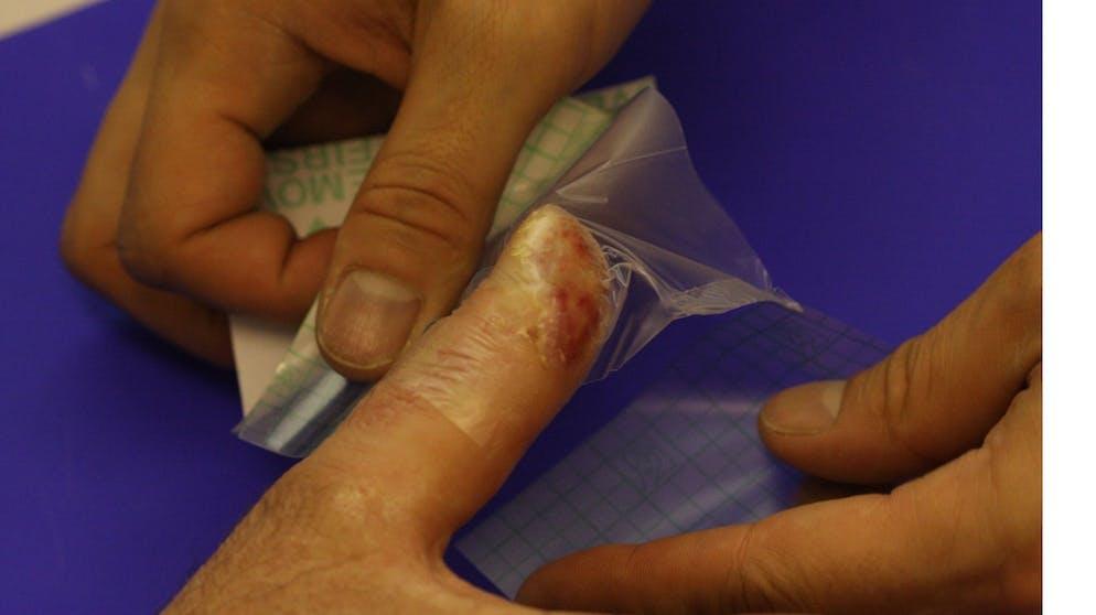 Nicht fingernagel nach wächst Fingernagel löst