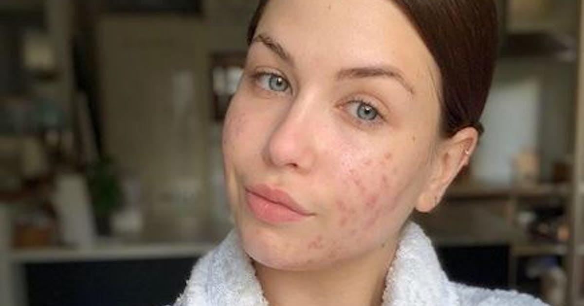 EnjoyPhoenix dévoile son acné